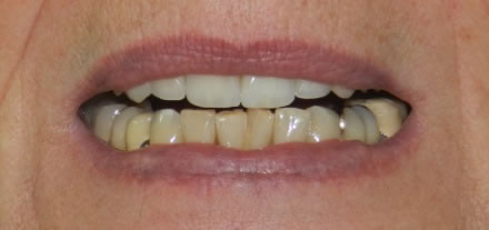 Before treatment by the dentist at Clinica Dental Soriano, Marbella