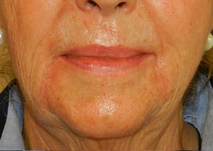 A very satisfied customer. After wrinkler filler, her wrinkles are less visible and looks happier