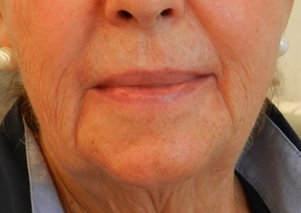 a customer from Marbella would like to do something about het wrinkles at the corner of her mouth