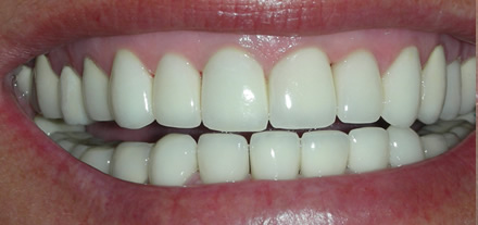 After treatment she now has bright shining teeth in a healthy mouth