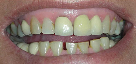 Customer from Marbella requested bright shining teeth