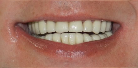 After treatment by the dentist at Clinica Dental Soriano, Marbella