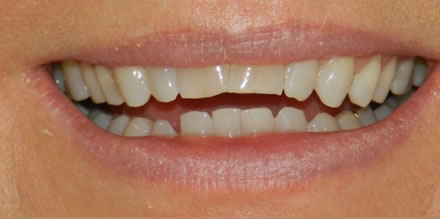 Teeth before treatment at Clinica Dental Soriano