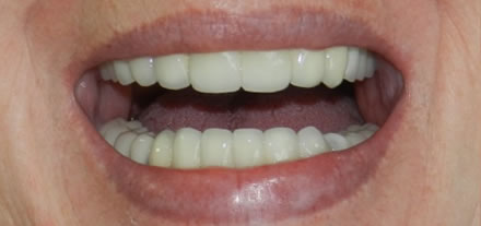 After placing 3 bridges by dentist CDS Marbella