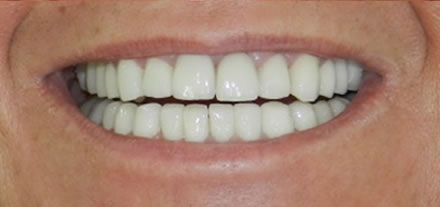 Customer after placing 30 crowns by visiting Clinica Dental Soriano