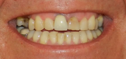 a customer from the center of Marbella would like to have a sparkling smile